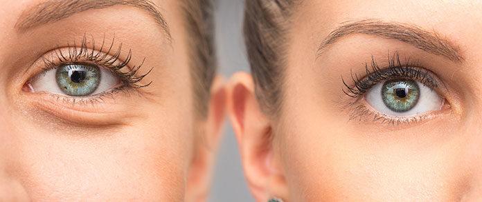 Możliwe przyczyny szklistych oczu