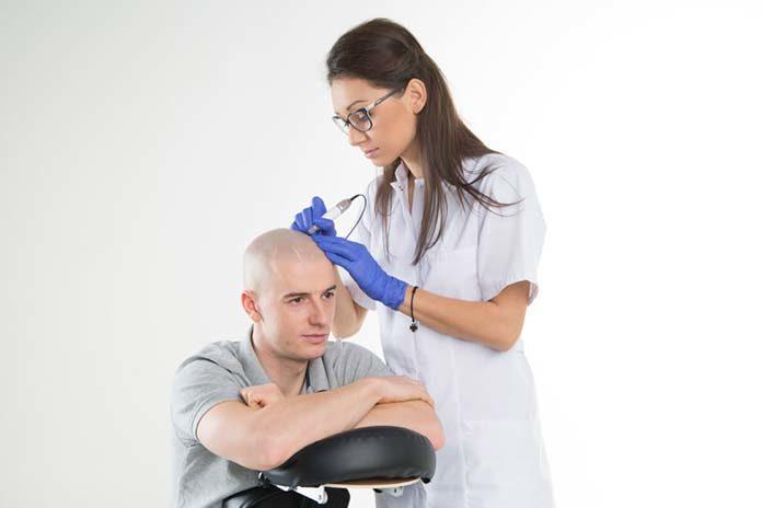 Rewolucyjna metoda walki z oznakami łysienia